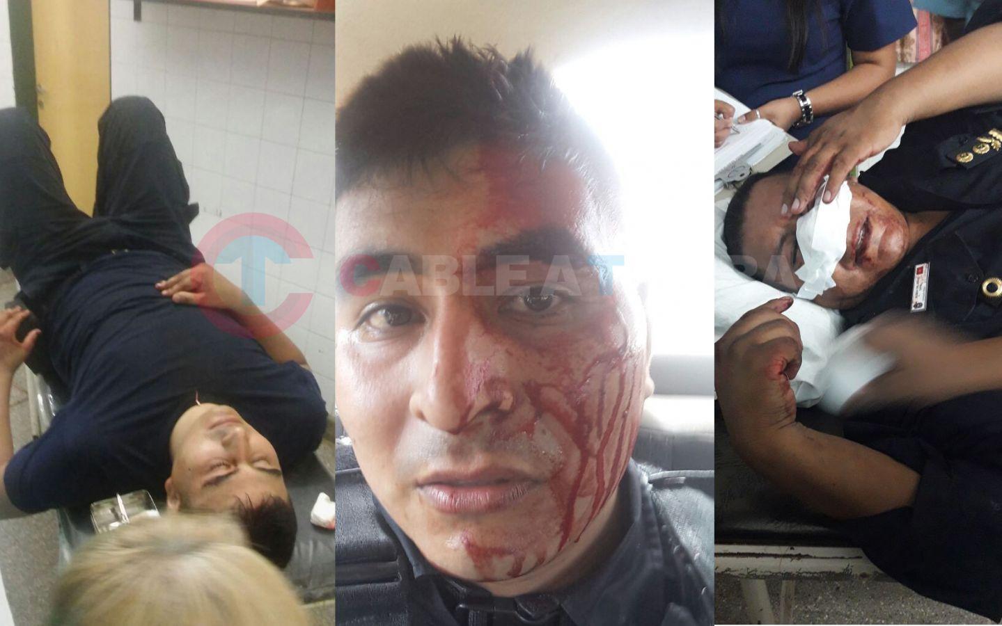 Video: Salvaje ataque a la Policía